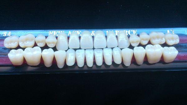 Показания к установке зубов Yamahachi