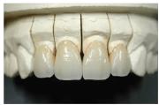 Безметалловые коронки на зубы