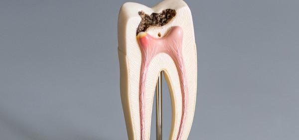 Всегда ли нужна депульпация зуба перед протезированием