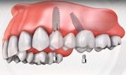 Имплантация зубов без наращивания костной ткани