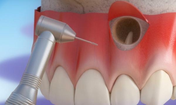 Удаление кисты зуба под коронкой