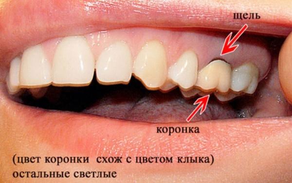 Киста под коронкой зуба лечение народными средствами