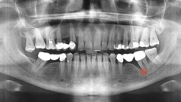 Киста на корне зуба под коронкой лечение
