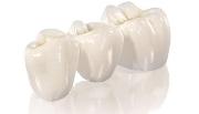 Металлические коронки на зубы с напылением