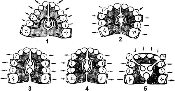 Ортодонтические аппараты механического действия отзывы
