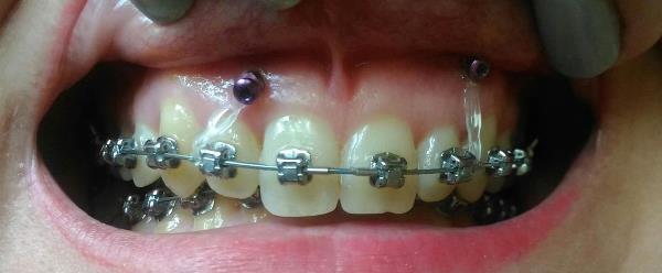 Скелетная опора в ортодонтии ― что это такое