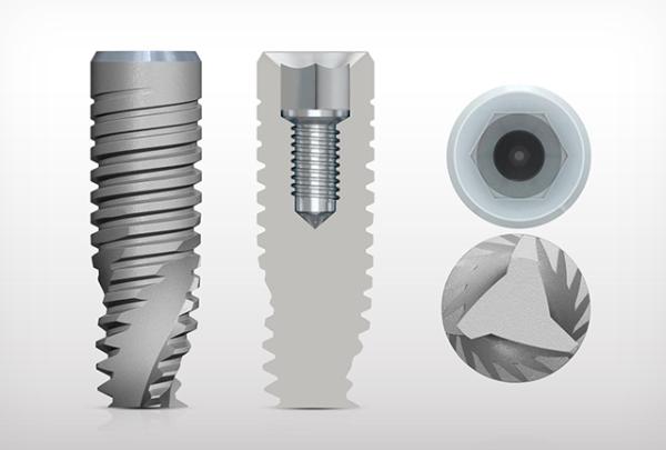 Особенности установки винтового импланта