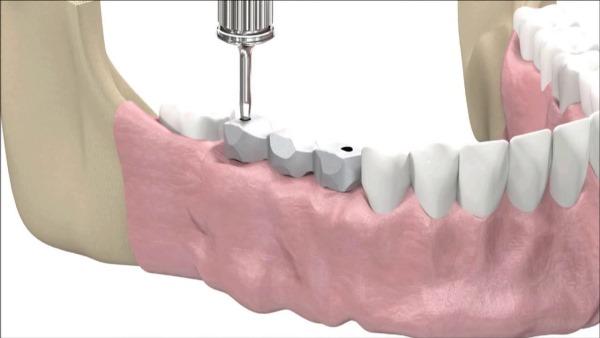 Винтовая и цементная фиксация имплантов цена
