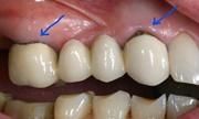 Необходимость замены зубных коронок