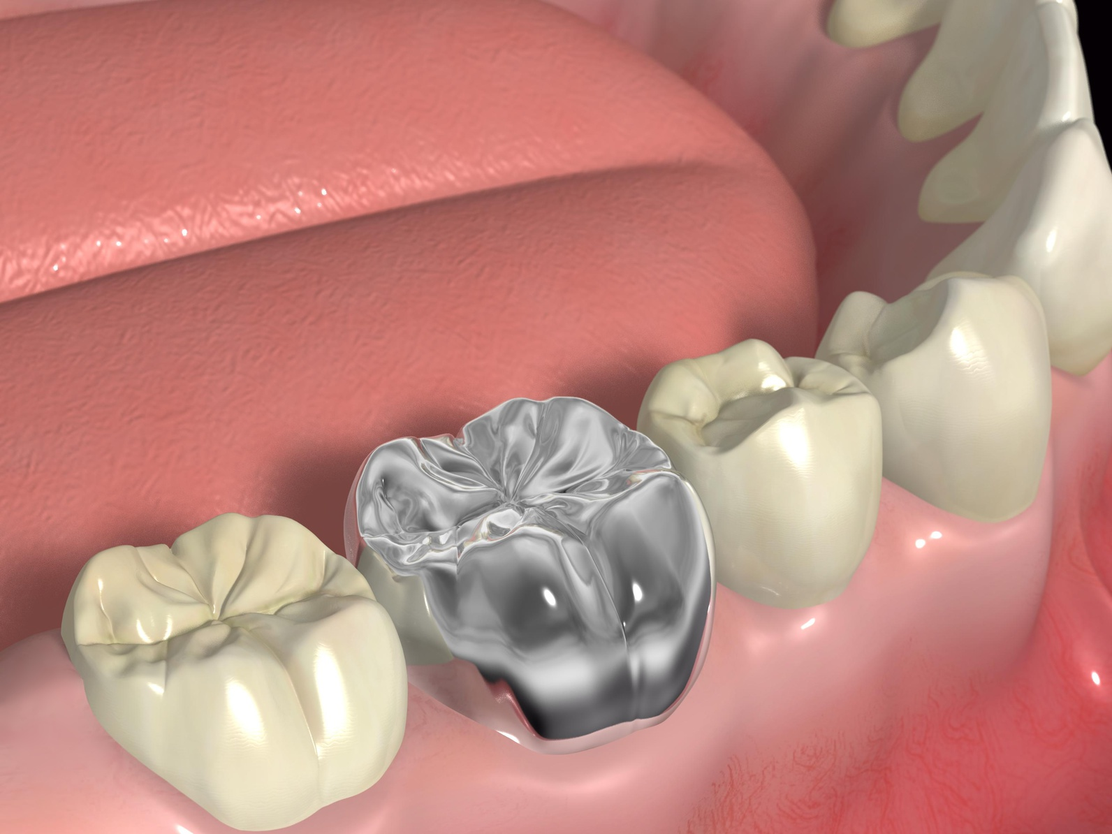 установка коронки на зуб