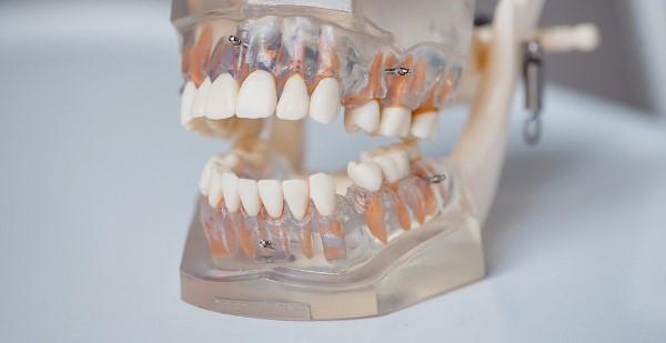 Требования к анкоражу в ортодонтии