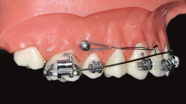 Анкораж в ортодонтии