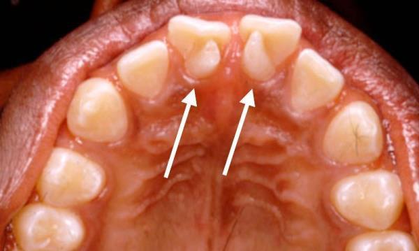 Способы лечения инвагинации зуба