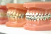 Методы ортодонтического лечения отзывы