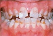 Патологии зубов у детей