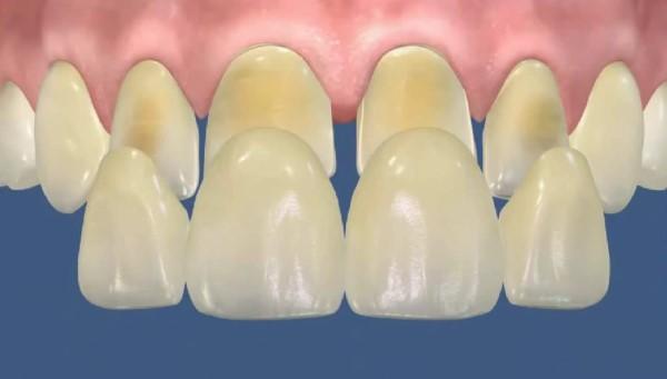 Какой метод препарирования зуба под винир самый лучший