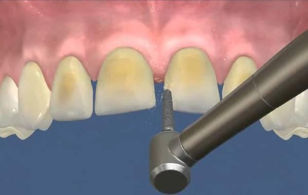 Препарирование зубов под керамические виниры