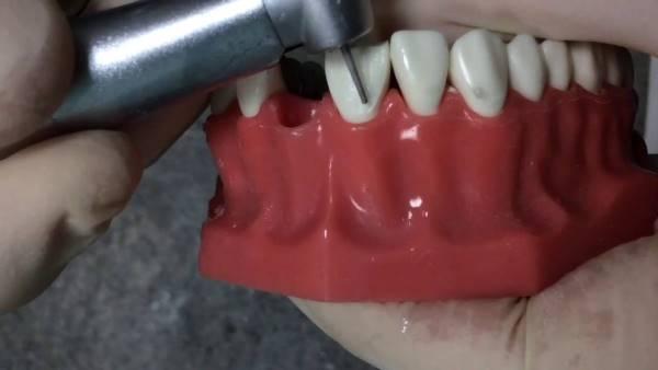 Препарирование зубов под виниры 5 методов обточки