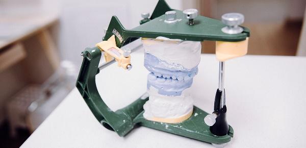 Сложное протезирование при отсутствии зубов