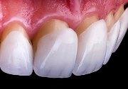 Циркониевые виниры на зубы отзывы