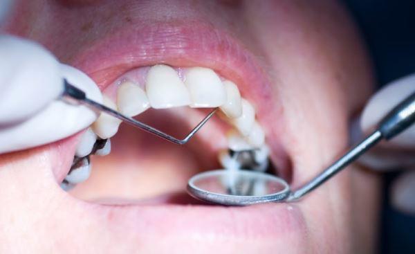 Показания к трепанации зуба и что это такое