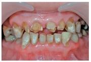 Патология зубов
