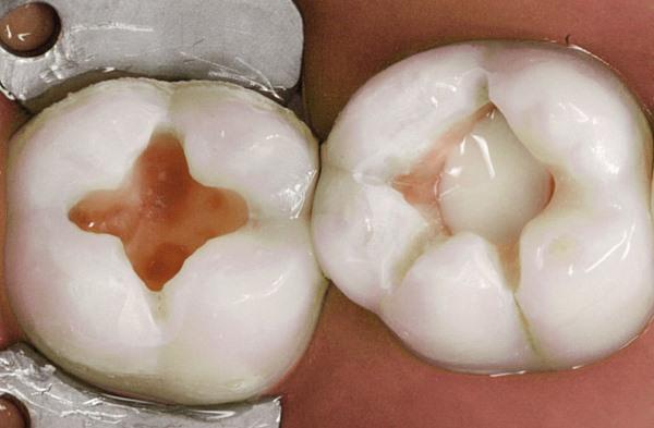 Техника использования прокладок для зубов