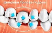 Синдром Попова Годона лечение