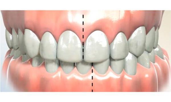 Смещение средней линии зубов исправить