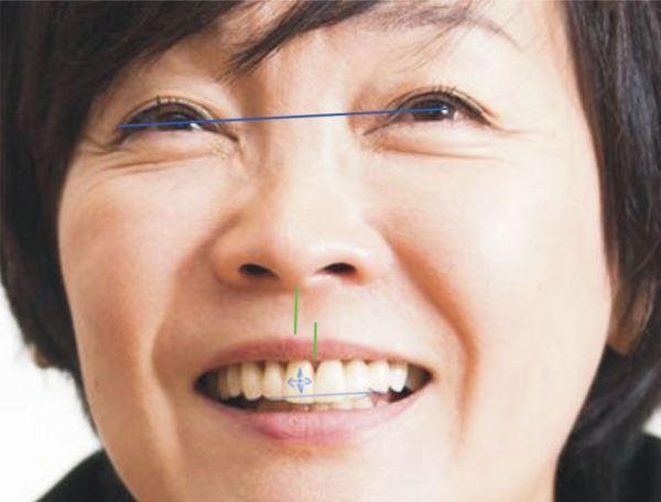 Классификация смещения средней линии зубов