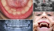 Сверхкомплектные зубы удаление