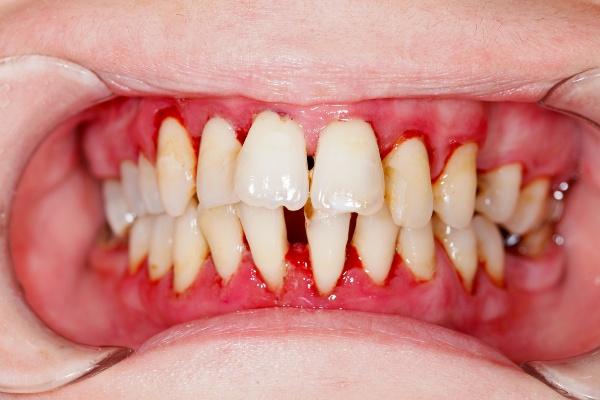 Лечение рецессии десны в стоматологии