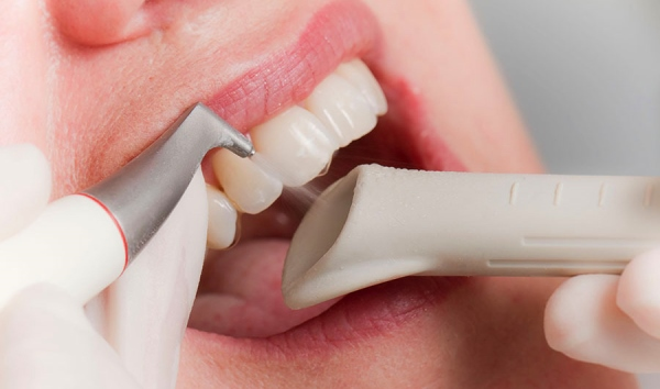 Как убирают зубной налет в стоматологии