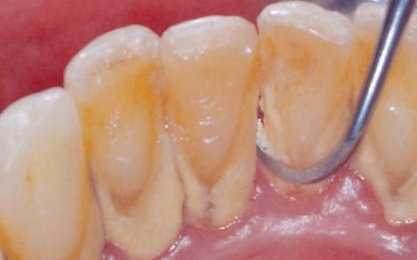 Как эффективно убрать зубной налет в стоматологии