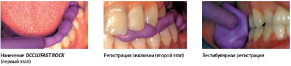 Канюли для окклюфаст в стоматологии