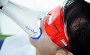 Отбеливание зубов Luma Cool цена