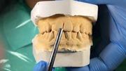 Смещение средней линии зубов