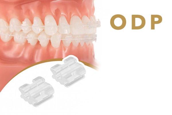 Разновидности брекетов ODP