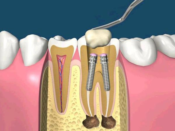 Ультразвуковое расширение корневого канала зуба