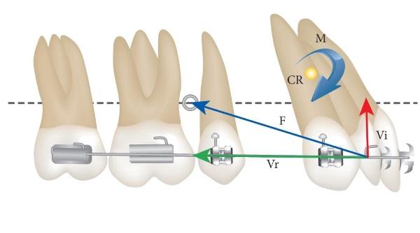 Процесс ортодонтического смещения