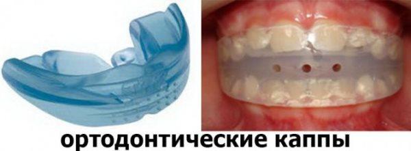 Ортодонтические капы