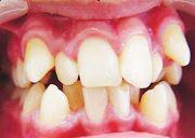 Что такое оральное положение зубов