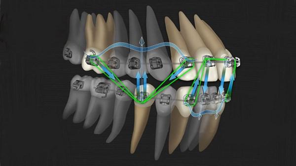 Механизм перестройки костной ткани при перемещении зубов