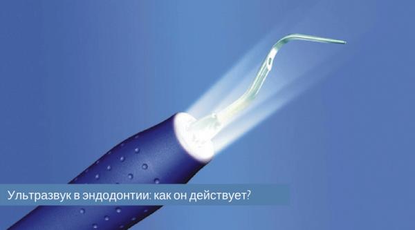 О популярности ультразвука в эндодонтии
