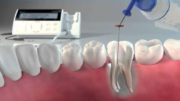 Ultrazvuk-v-endodontii-ispolzvanie