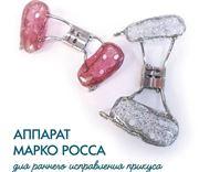 Аппарат Марко Росса назначение