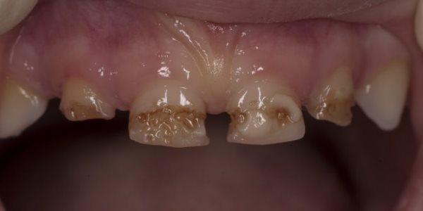 Причины развития зубов Тернера