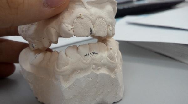 Как делается слепок зубов для брекетов