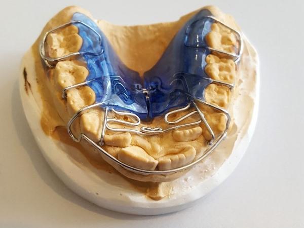 Принцип действия Биоблока в ортодонтии