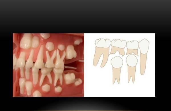 Персистентный зуб это